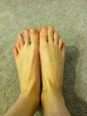 Runner's Feet = not pretty