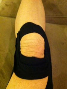 The doctor says taping it right gives you Shar Pei knee, I just think it makes me feel really old.